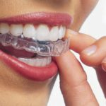 what-you-need-to-know-about-invisalign