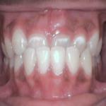 anterior crossbite