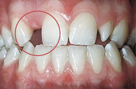 Dental agenesis