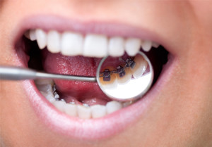 cost-of-lingual-braces