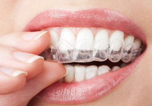 invisalign-braces-for-teens