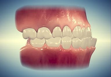 Common Orthodontic Problems | Angel Orthodontics