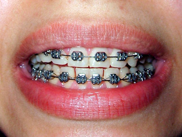 cost-of-metal-braces