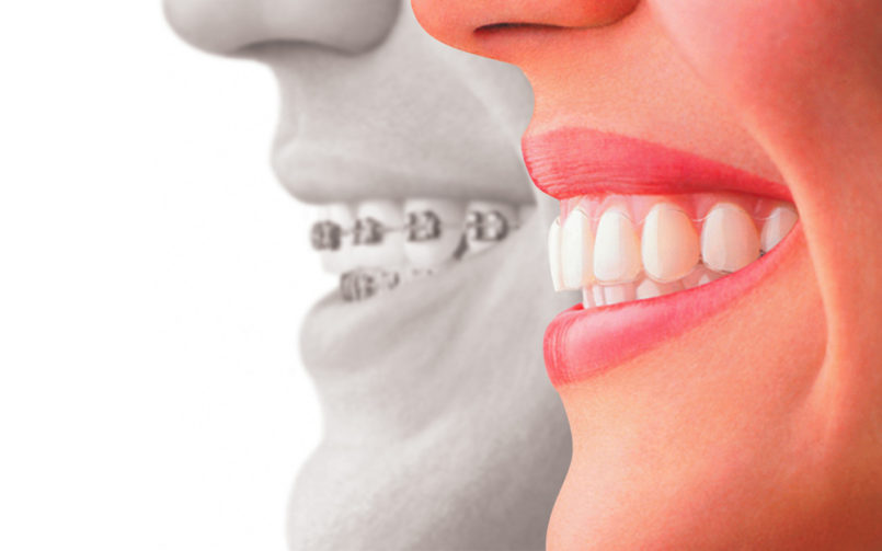 invisalign-and-traditional-braces