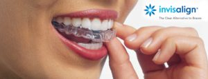 cost-of-invisalign-clear-aligners