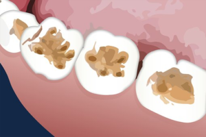 What is tooth erosion