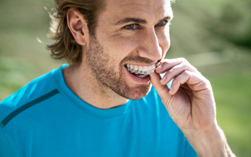 invisalign-removable-transparent-braces