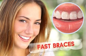 Can Braces Change My Face Appearance Angel Orthodontics
