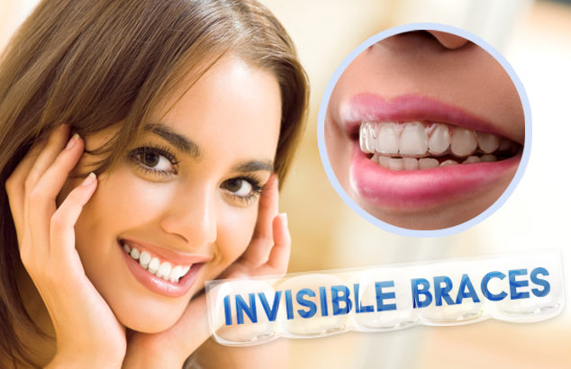 invisible braces for crooked teeth