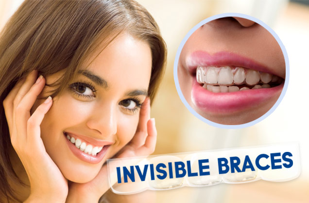 Invisible-Braces