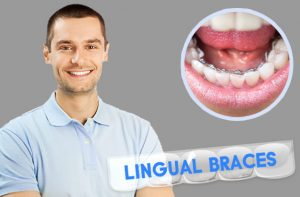 Can braces change my face appearance? | Angel Orthodontics