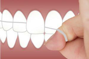 keep-my-gums-healthy