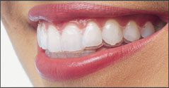How much does Invisalign cost UK? ( Invisalign braces cost