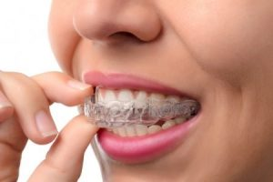 uk-Invisalign-removable-braces
