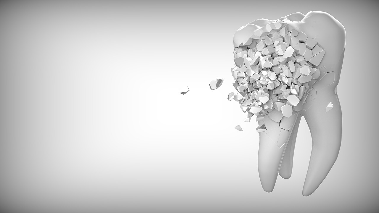 tooth enamel erosion and tooth decay