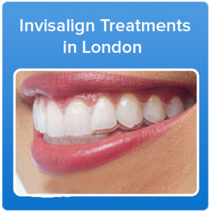 How much does Invisalign cost UK? ( Invisalign braces cost)   Angel