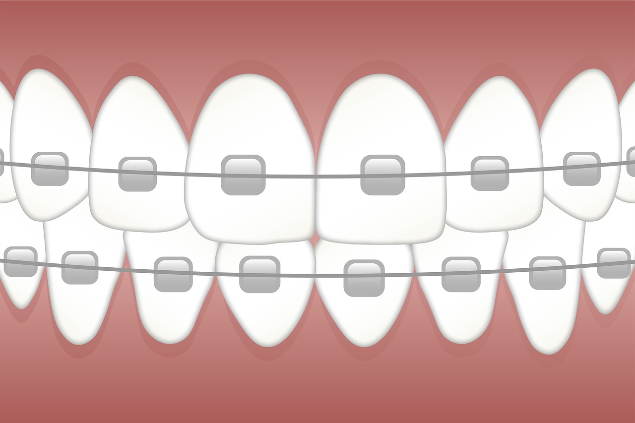 how-to-prevent-swollen-gums-when-wearing-braces