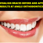 Invisalign Braces Before and After Results at Angle Orthodontics