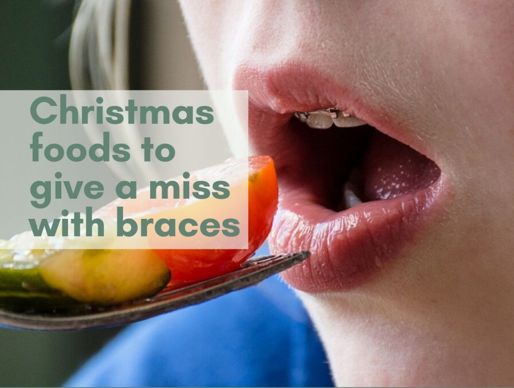 Foods to avoid with braces uk