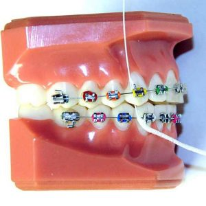 Superfloss-Braces Cleaning Tools