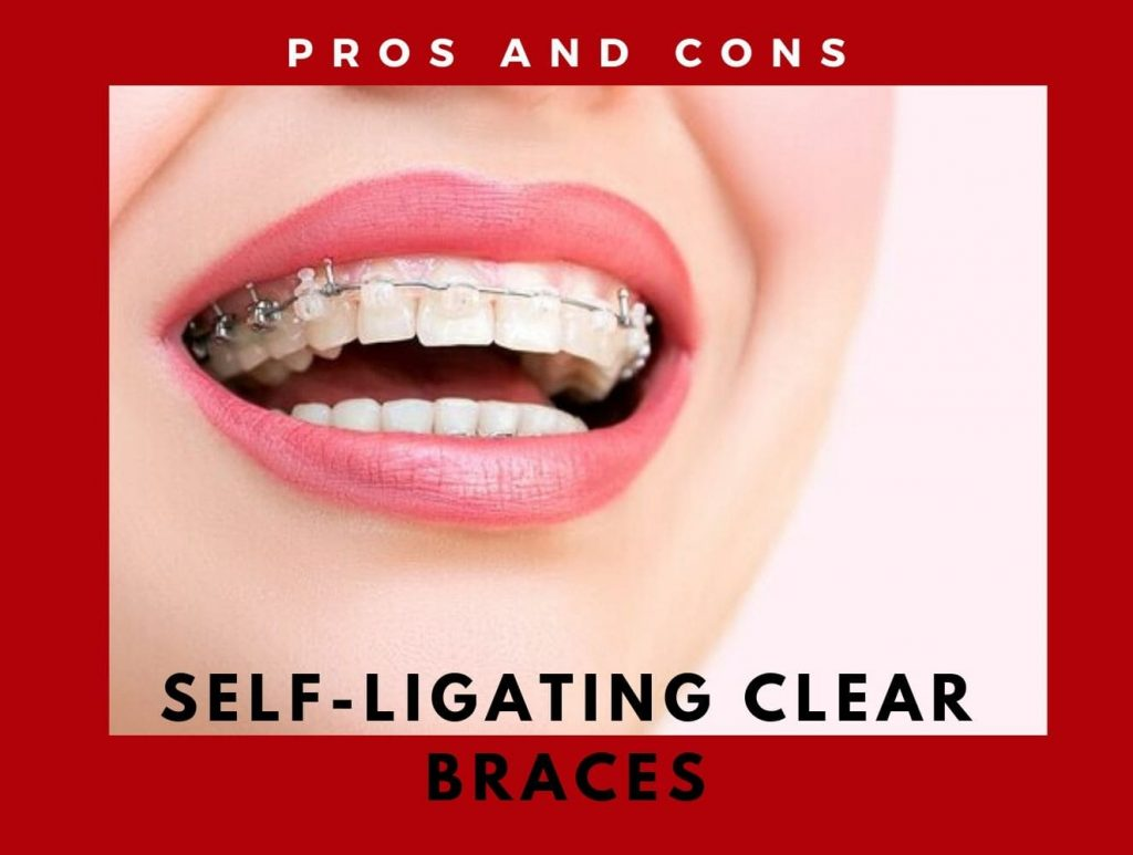 self ligating braces pros and cons