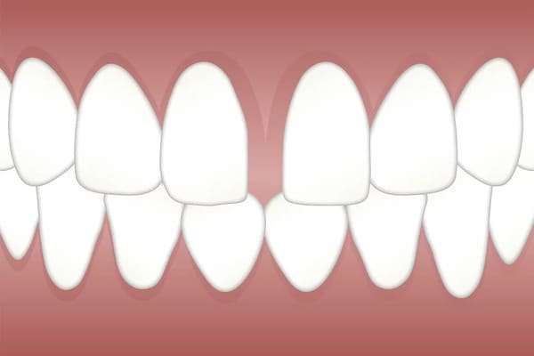 Gap Between Teeth
